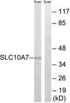 C18826-1 - SLC10A7