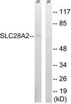 C18845-1 - SLC28A2 / CNT2