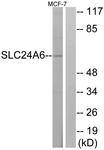 C18851-1 - SLC24A6