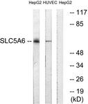 C18862-1 - SLC5A6 / SMVT