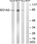 C18884-1 - SLCO1A2 / OATP1