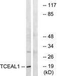 C19159-1 - TCEAL1 / SIIR