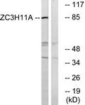C19574-1 - ZC3H11A