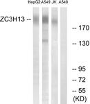 C19575-1 - ZC3H13