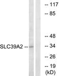 C19629-1 - Zinc transporter ZIP2 / SLC39A2
