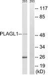 C20728-1 - PLAGL1