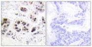 D0002-1 - Histone H2A.Z