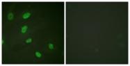 D0003-1 - Histone H2B