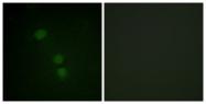 D0005-1 - Histone H2B