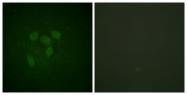 D0015-1 - TP53 / p53