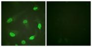 D0016-1 - TP53 / p53