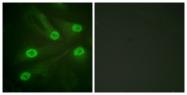 D0017-1 - TP53 / p53