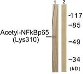 D0018-1 - RELA / NF-kB p65