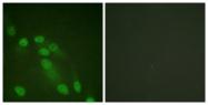 D0038-1 - RELA / NF-kB p65