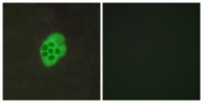 G014-1 - Serotonin receptor 4 / HTR4