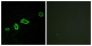 G015-1 - Serotonin receptor 5A (HTR5A)