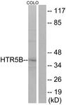 G016-1 - Serotonin receptor 5B (HTR5B)