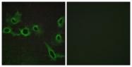 G018-1 - Serotonin receptor 7 (HTR7)