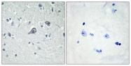 G020-1 - Adenosine receptor A2a