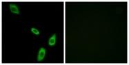 G024-1 - Alpha-1B adrenergic receptor / ADRA1B