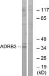 G033-1 - Beta-3 adrenergic receptor