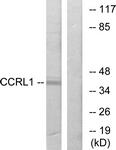 G060-1 - CCR11 / CCRL1