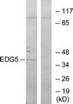 G086-1 - EDG5 / S1P2
