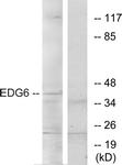 G087-1 - EDG6 / S1P4