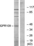 G121-1 - Nicotinic acid receptor 2