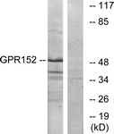 G138-1 - GPR152 / PGR5