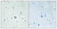 G202-1 - Adenosine receptor A2a