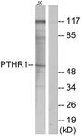 G220-1 - PTH Receptor 1