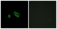 G252-1 - FMLP-related receptor II