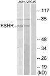 G253-1 - FSH Receptor