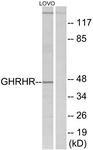 G271-1 - GHRH receptor