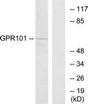 G278-1 - GPR101