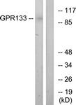 G292-1 - GPR133 / PGR25