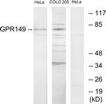 G300-1 - GPR149 / PGR10