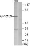 G304-1 - GPR153 / PGR1