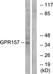 G306-1 - GPR157