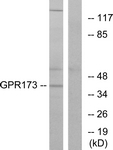 G311-1 - GPR173 / SREB3