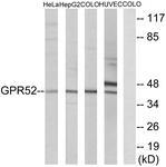 G344-1 - GPR52