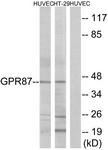 G358-1 - GPR87 / GPR95
