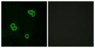 G377-1 - Latrophilin-1 / AGRL1