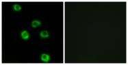 G378-1 - Latrophilin-2
