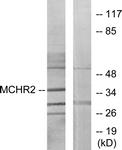 G387-1 - MCHR2 / GPR145