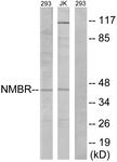 G405-1 - Neuromedin B receptor