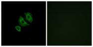 G422-1 - Olfactory receptor 10J6