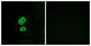 G436-1 - Olfactory receptor 2T10