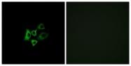 G455-1 - Olfactory receptor 51T1